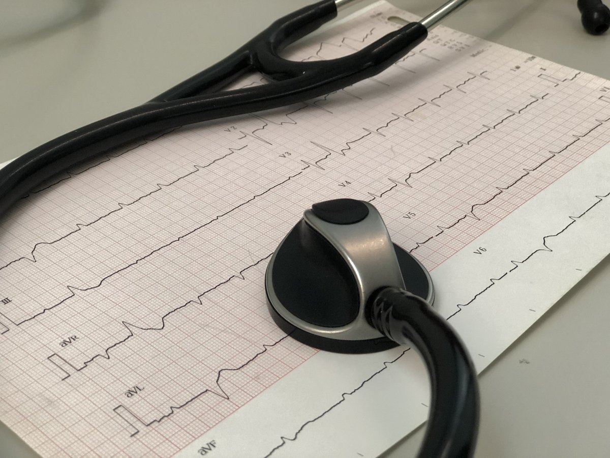 KI-Algorithmus erkennt Herzrhythmusstörung trotz unauffälligem EKG