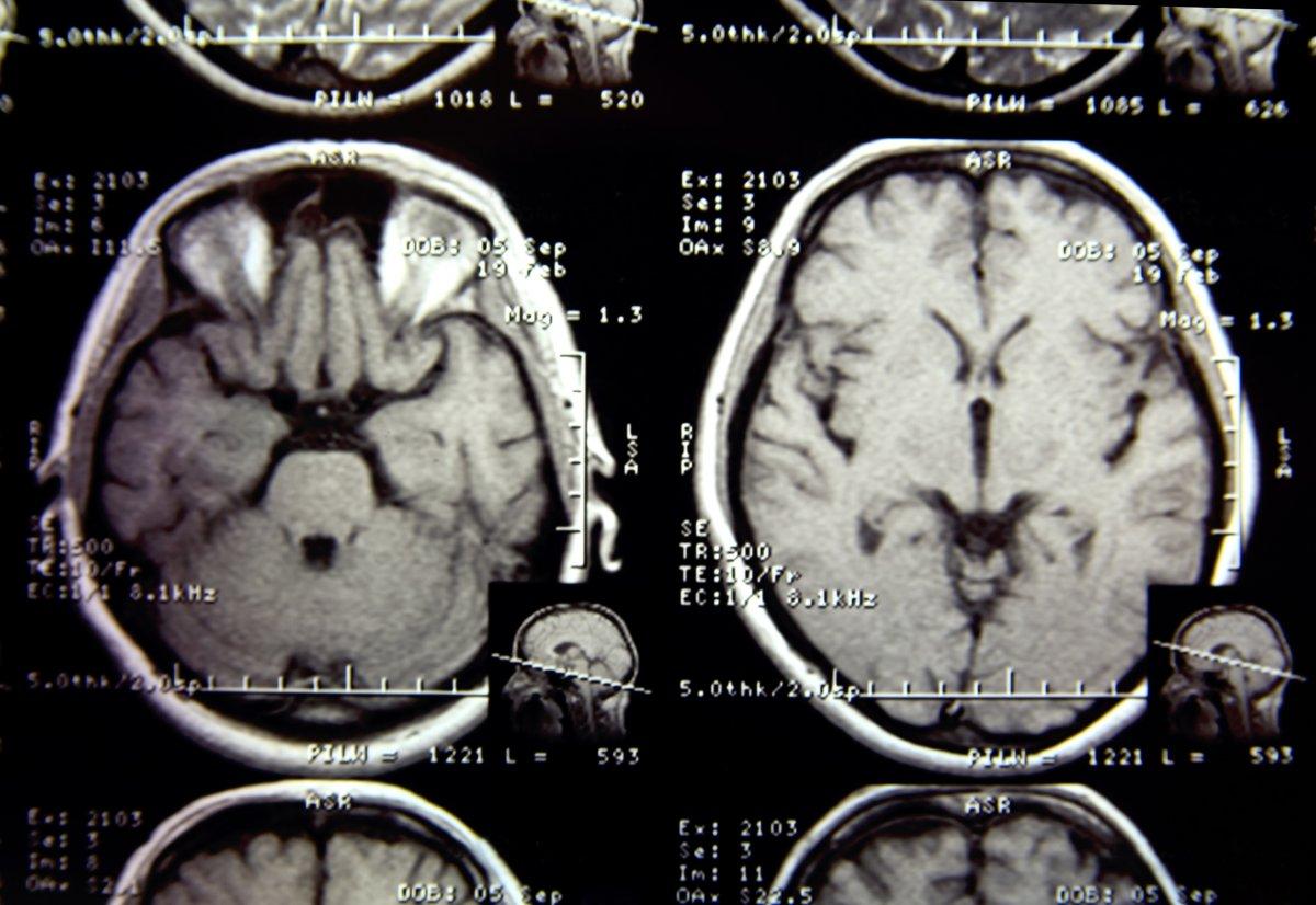 Alzheimer-Forschung: Der Keim des Vergessens