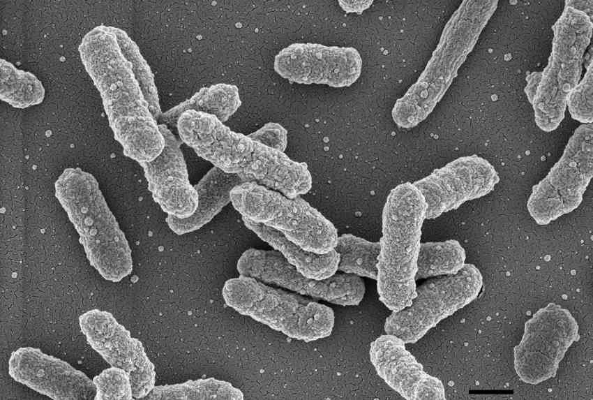 Seuchen: Resistente Bakterien sind die nächste Pandemie