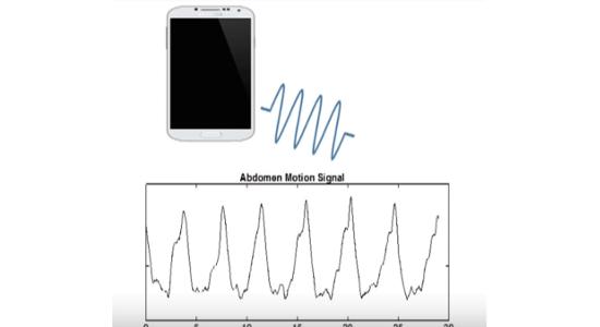 Schlafapnoe: App überwacht Betroffene via Schall