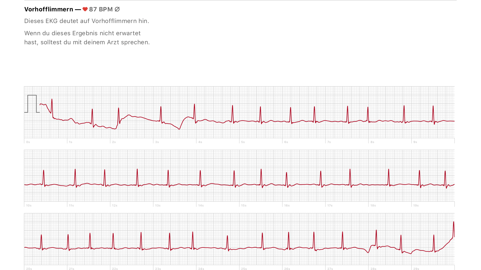 """Herzspezialist: """"Das EKG der Apple Watch ist hervorragend"""""""