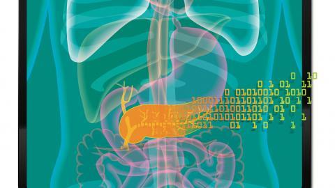 Künstliche Bauchspeicheldrüsen