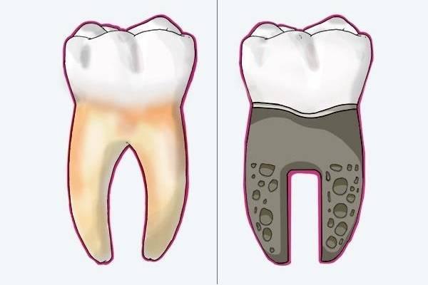 Zahn-Implantate ohne Bohren und Schleifen