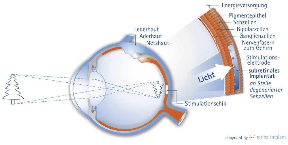 Netzhaut-Implantat