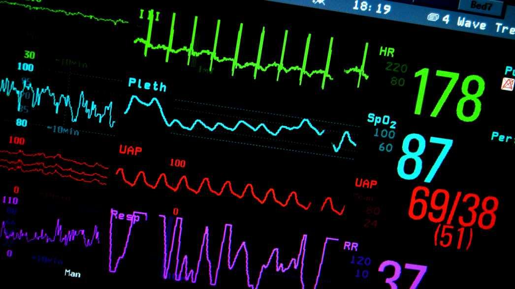 eHealth, Big Data in der Medizin, Medizintechnik, Puls