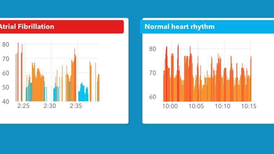 Studie: Apple Watch erkennt abnormalen Herzrhythmus