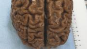 Tödliches Gehirn-Backup
