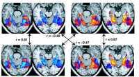 Fehlerhafte Software könnte Jahrzehnte an Hirnforschung