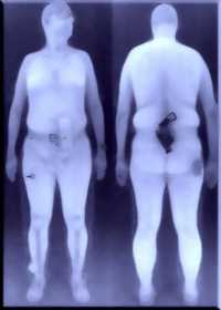 Darstellung einer durchleuchteten Person bei einem Ganzkörperscanner
