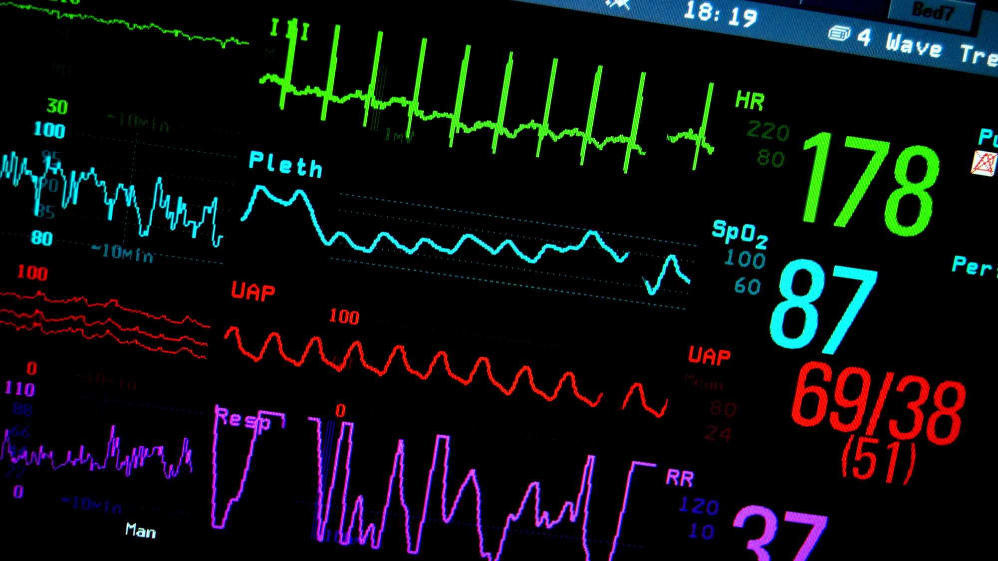 eHealth, Big Data in der Medizin, Medizintechnik, Puls