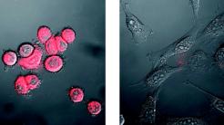 Neues Verfahren soll mittels Nanotechnik Tumore erkennen