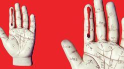 Bluttest auf Krebs-DNA lässt Behandlungserfolg von Darmtumor-Operationen erkennen