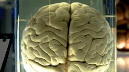 Verriss des Monats: Der Hirnturbo