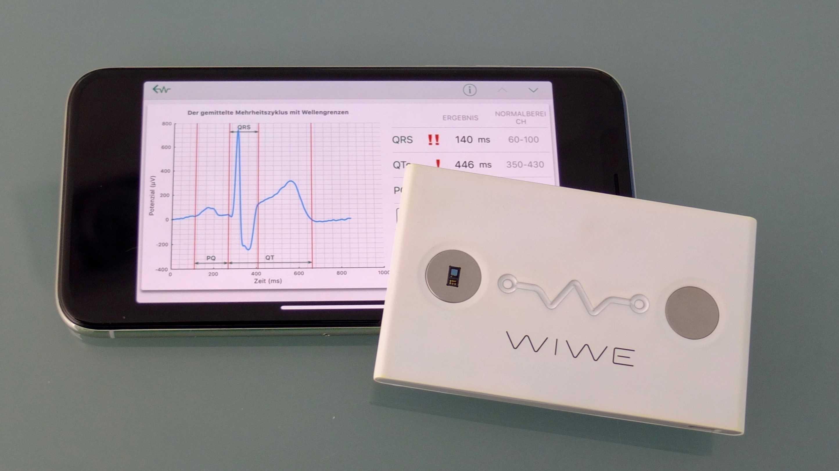 WIWE: Mobiles EKG für Android oder iPhone
