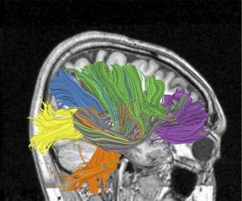 Wenn es nur so einfach wäre: IBM-Illustration zum Cognitive-Computing-Projekt