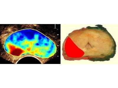 """Prostata-Untersuchung mit dem """"Contrast Ultrasound Dispersion""""-Verfahren. Der Tumorbereich ist rot eingefärbt."""
