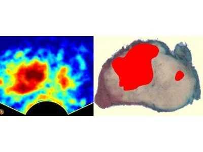 Auf der rechten Seite ist eine entnommene Prostata zu sehen.