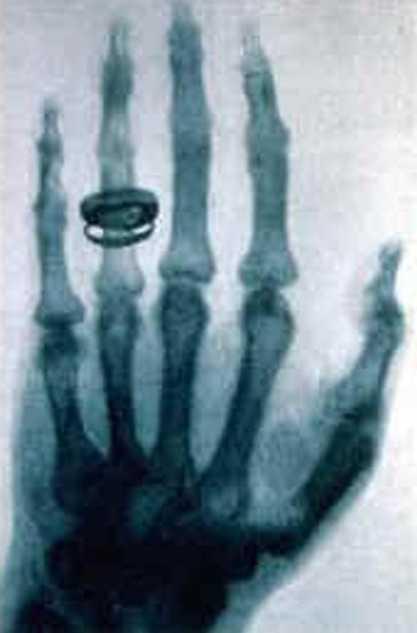 Die erste Röntgenaufnahme einer Hand