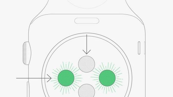 Tattoo-Probleme mit der Apple Watch: Apple erklärt sich