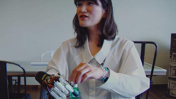 Frau mit Handprothese