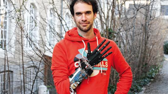 Handprothese mit 3D-Drucker