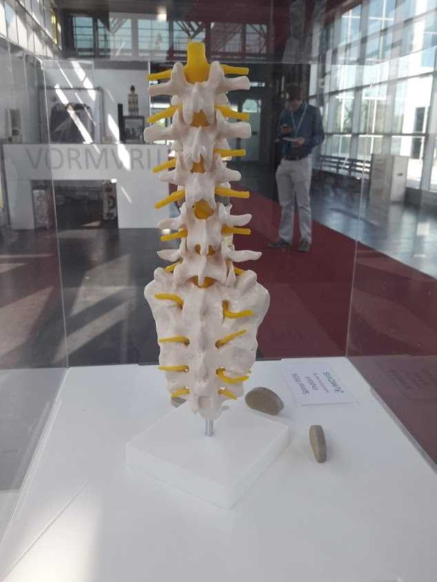 Selbst Implantate lassen sich mit dem 3D-Drucker ausdrucken.