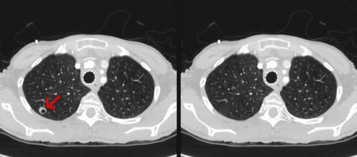 """Im Video zeigen die Forscher, wie CT-GAN Krebsgewebe """"entfernt""""."""
