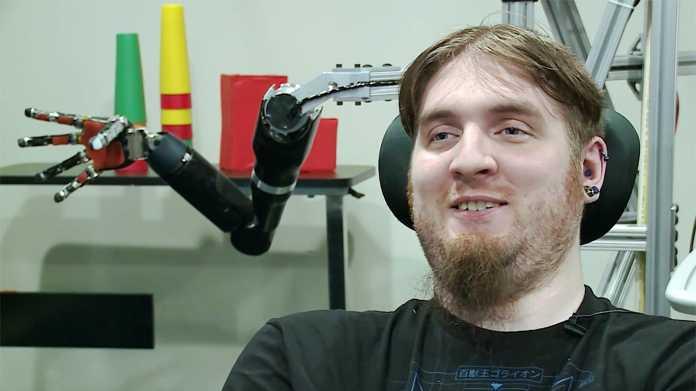 """""""Ich wünschte, sie hätten bei mir mehr Elektroden eingesetzt"""""""