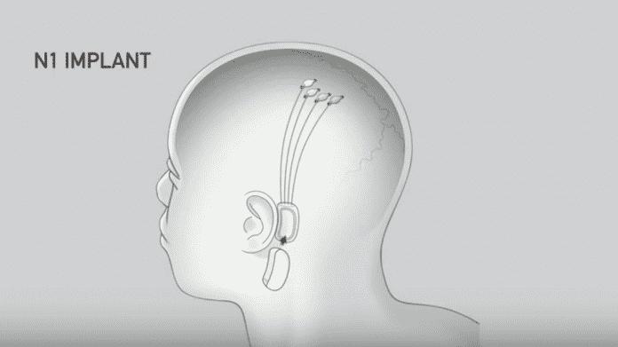 """Neurologen an Elon Musk: Neuralinks Hirn-Implantat ist """"unseriöser Hype"""""""
