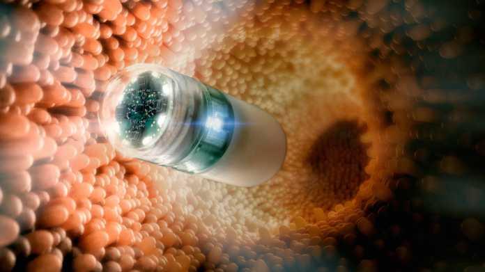 Livestream aus dem Körper: Magenspiegelung mit Kamerapille und Magnet