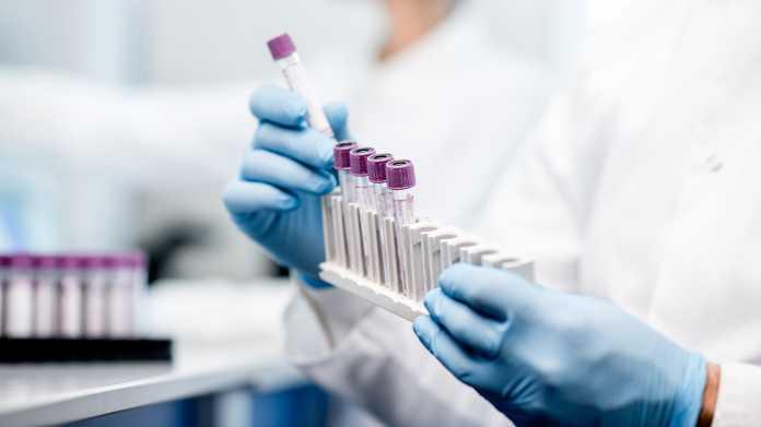 Coronakrise: Frühwarnsystem für Viren aus dem Tierreich gefordert