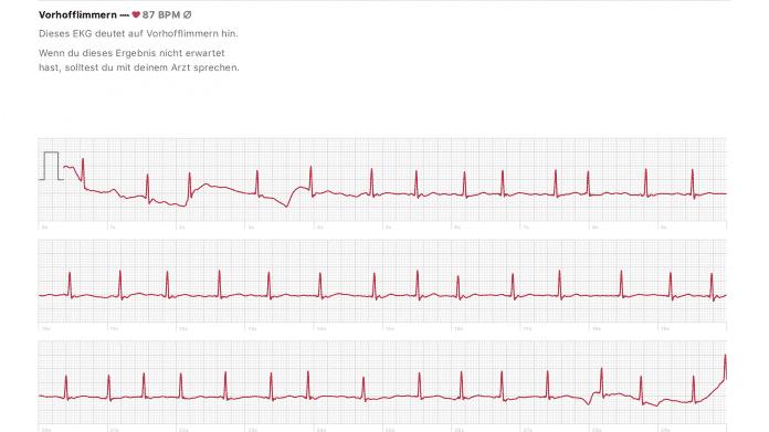 EKG auf der Apple Watch Series 4