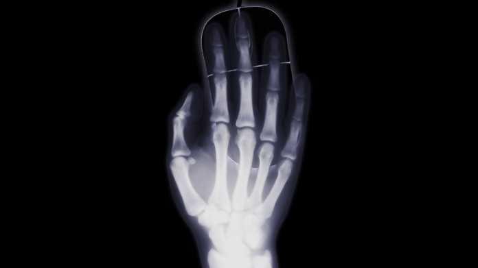 Röntgenbild einer rechten Hand auf einer Computermaus