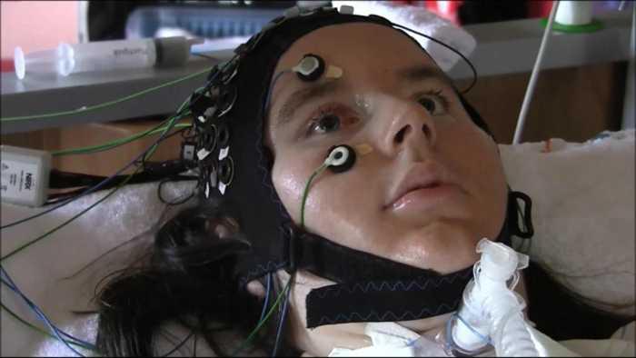 Hirnforscher entwickeln Kommunikationssystem für völlig gelähmte Menschen