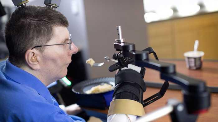 Neuartige Neuroprothese macht Arm und Hand von Gelähmten wieder beweglich