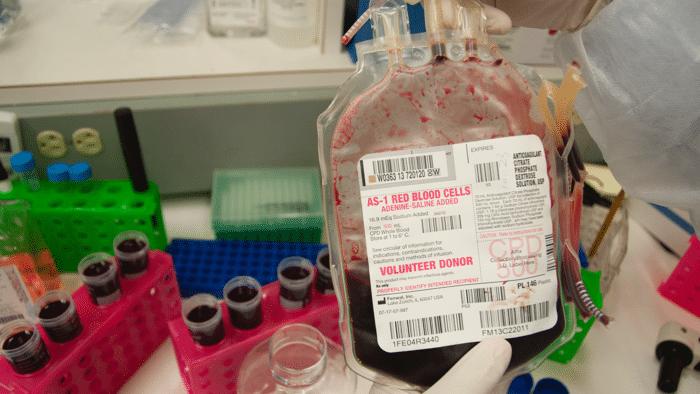 Gentherapie gegen Hämoglobinmangel
