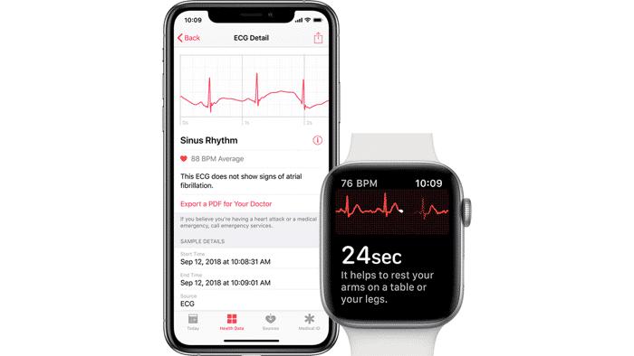 EKG für Apple Watch im Anflug