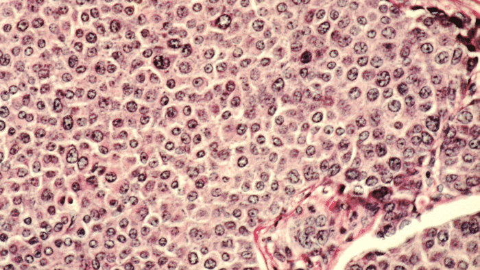 Mit Strom und Ultraschall gegen Tumore