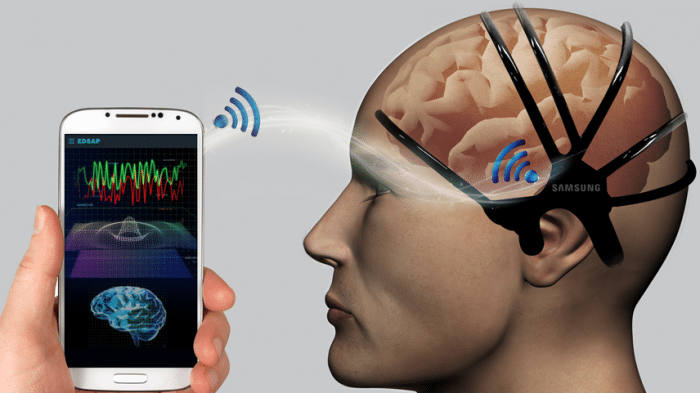 Sensoren sollen drohenden Schlaganfall erkennen
