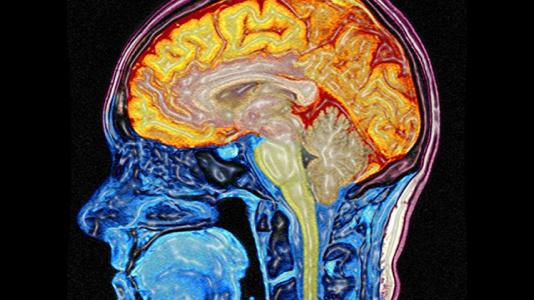 Mit Big Data das Hirn besser verstehen