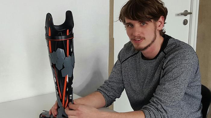Beinprothese aus dem 3D-Drucker