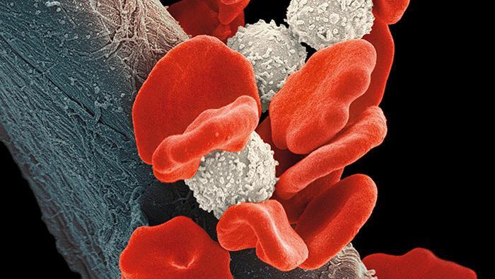 Krebsforschung: Immuntherapie mit CRISPR auf dem Vormarsch