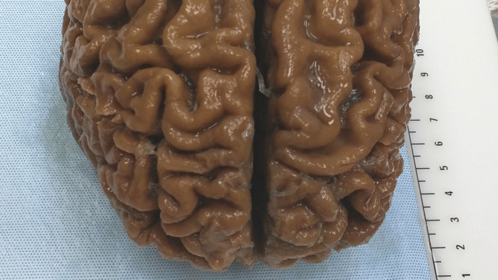 Start-up will Euthanasie zur Hirnkonservierung anbieten