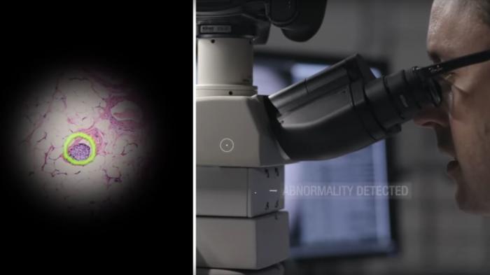 Künstliche Intelligenz: Googles AR-Mikroskop erkennt selbstständig Krebszellen