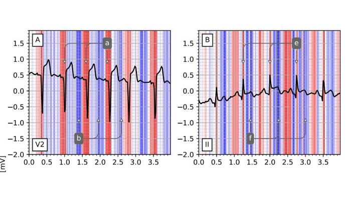 Neuronales Netz erkennt Herzinfarkte so gut wie erfahrene Kardiologen