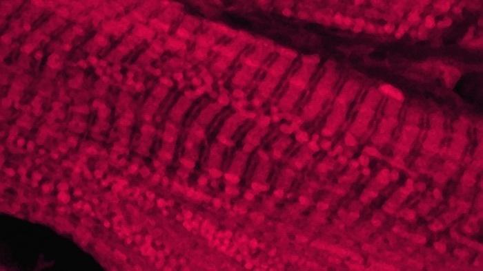 Neue Hoffnung bei Gen-Therapien gegen Herzinsuffizienz
