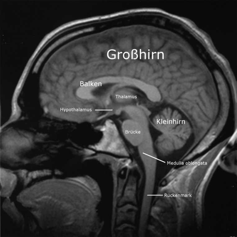 MRT-Bild eines menschlichen Gehirns. Schnitt sagittal.